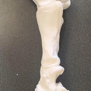 Esqueleto Distal de Membro de Chris Pollitt