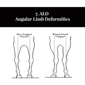 7. ALD Angular Limb Deformities