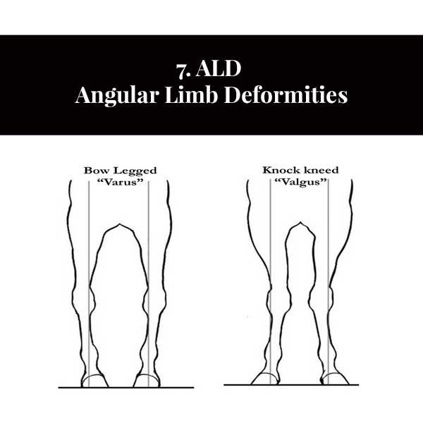 7. Deformidades de las extremidades angulares ALD